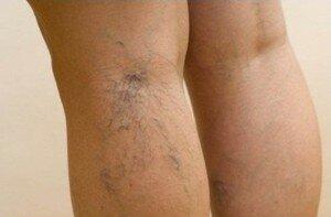 Фото варикоза вен на ногах